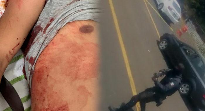 """Policías dispararían a autobús hiriendo a dos normalistas y chofer; """"no respetó filtro"""", dice SSP"""